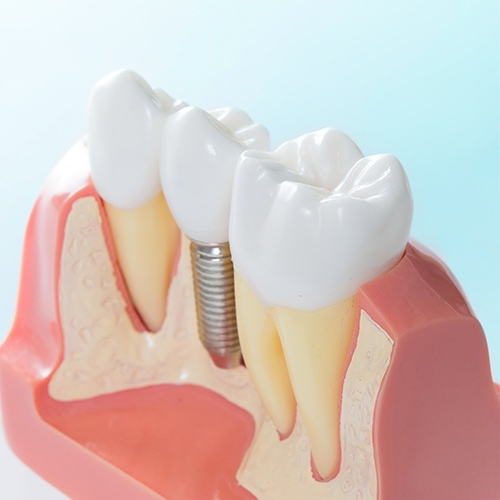dental implant in Calgary