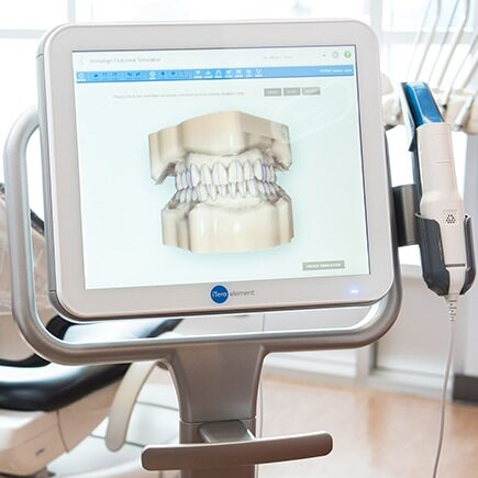 dental-crowns-with-itero-scanner-in-calgary