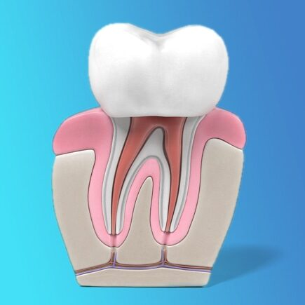 root canal restoration in Calgary
